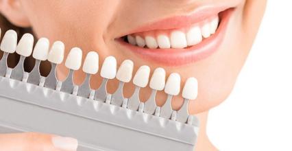 Quy trình bọc răng sứ và một số lưu ý trước và sau khi bọc răng sứ
