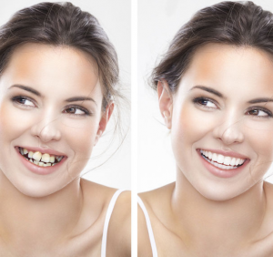 Niềng răng có gây ra đốm trắng trên răng không ? Top 5 địa chỉ niềng răng uy tín hàng đầu tại Hà Nội